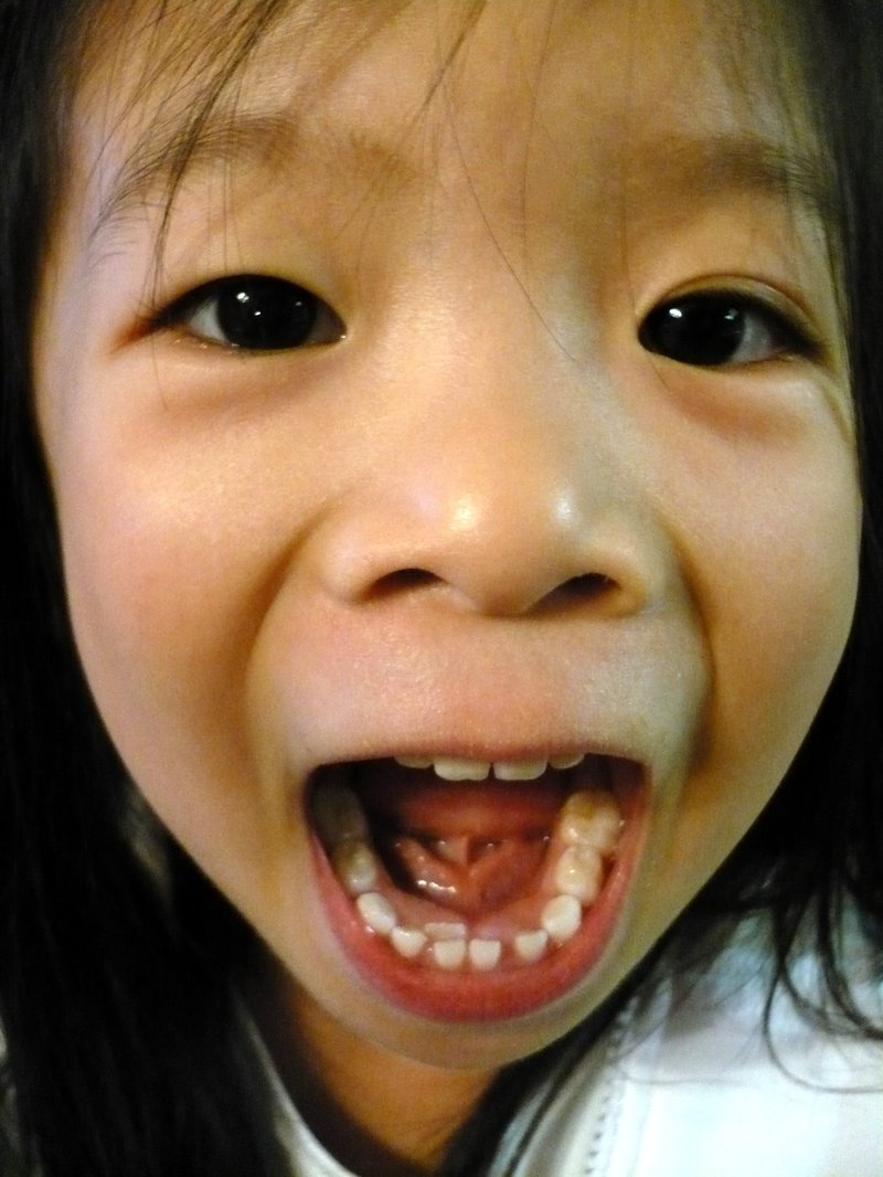 All I Want For Christmas Is My Two Front Teeth Greetingarts